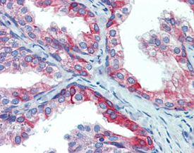 ERp72 polyclonal antibody Immunohistochemistry