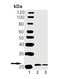 VAMP2 polyclonal antibody Western blot