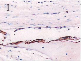 Osteopontin polyclonal antibody Immunohistochemistry