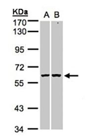 PARP-3 polyclonal antibody Western blot