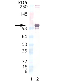 LRRC32 (human):Fc (human), (recombinant) Western blot