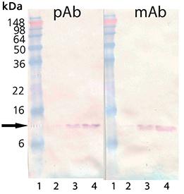 β2-Microglobulin (human), (native) Western blot