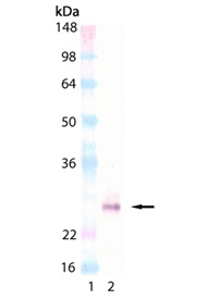 ACRP30headless (human) monoclonal antibody (Ne.Na) Western blot