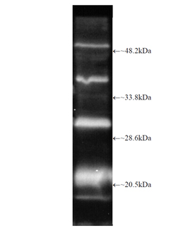 Proteasome 20S β2i subunit polyclonal antibody Western blot