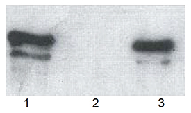 p62 (human) polyclonal antibody Western blot
