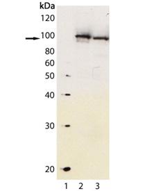 Aryl hydrocarbon receptor polyclonal antibody Western blot