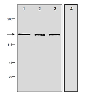 nNOS polyclonal antibody Western blot