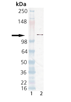 PARP polyclonal antibody Western blot