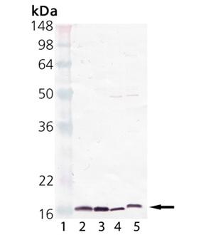 Cyclophilin A polyclonal antibody Western blot