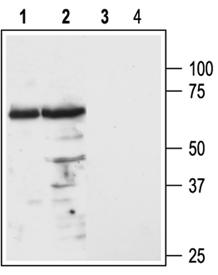 Melanocortin receptor 3 (extracellular) polyclonal antibody Western blot