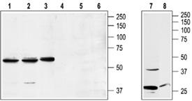 Neuropeptide Y1 receptor polyclonal antibody Western blot