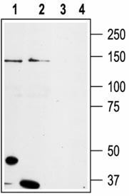 TRPM8 (extracellular) polyclonal antibody Western blot