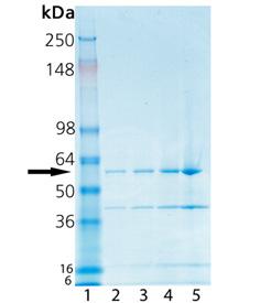 Phospholipase D (Streptomyces chromofuscus) SDS-PAGE