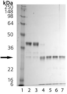 Cathepsin K (human), (recombinant) Activation