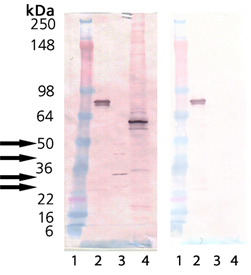 Proteasome 19S Rpn10/S5a subunit (human), (recombinant) (GST-tag) Western blot