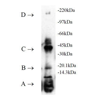 UbcH2 (human), (recombinant) (His-tag) SDS-PAGE