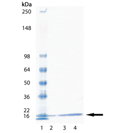 UbcH5a (human), (recombinant) (His-tag) SDS-PAGE