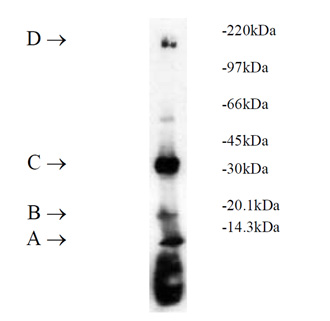 UbcH7 (human), (recombinant) (His-tag) SDS-PAGE