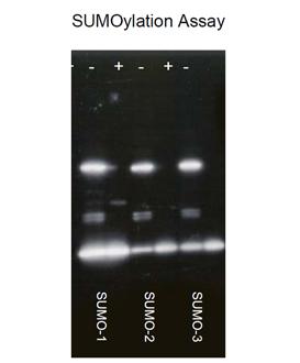 SUMO-1 (human), (recombinant) (His-tag) Western blot