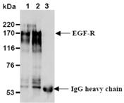 EGF receptor monoclonal antibody (6F1) Immunoprecipitation