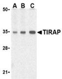 TIRAP polyclonal antibody Western blot