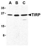 TIRP polyclonal antibody Western blot