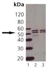TNF receptor 1 polyclonal antibody Western blot