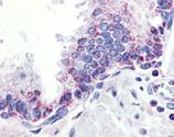 APRIL polyclonal antibody Immunohistochemistry