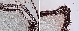 Cytokeratin 1/5/10/14 (human) monoclonal antibody (34βE12) (Ready-to-Use) Immunohistochemistry