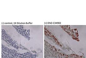 Cytokeratin 8 (human) monoclonal antibody (35βH11) Immunohistochemistry