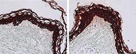 Cytokeratin 1/5/10/14 (human) monoclonal antibody (34βE12) Immunohistochemistry