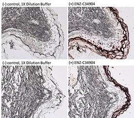 Cytokeratin 1 (human) monoclonal antibody (34βB4) Immunohistochemistry