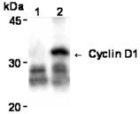 Cyclin D1 monoclonal antibody (5D4) Immunoprecipitation