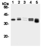 Cyclin D1 monoclonal antibody (5D4) Western blot