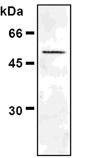 [pSer6]Vimentin monoclonal antibody (MO6) Western blot