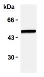 [pSer38]Vimentin monoclonal antibody (TM38) Western blot