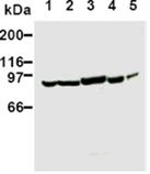 PI3 kinase monoclonal antibody (AB6) Western blot