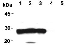 DJ-1 monoclonal antibody (3E8) Western blot