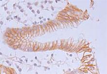 β-Catenin monoclonal antibody (12F7) Immunohistochemistry