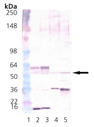 CaMKII polyclonal antibody Western blot