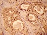 MEK1 polyclonal antibody Immunohistochemistry