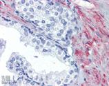 PKG polyclonal antibody Immunohistochemistry