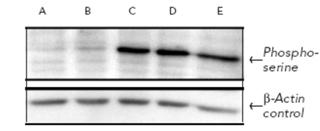 Phosphoserine polyclonal antibody Western blot