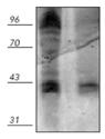 Phosphothreonine polyclonal antibody Western blot