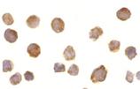 BTK polyclonal antibody Immunocytochemistry