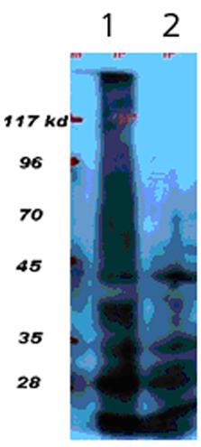 Phosphotyrosine polyclonal antibody (HRP conjugate) Western blot