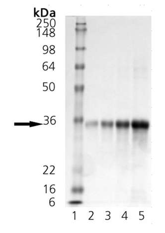 Dkk-1 (mouse), (recombinant) (His-tag) SDS-PAGE