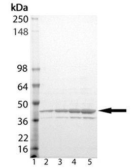 eIF2α (human), (recombinant) (His-tag) SDS-PAGE