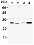 GST-P polyclonal antibody Western blot