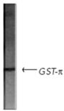 GST-π polyclonal antibody Western blot